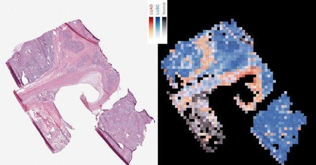 استفاده از هوش مصنوعی گوگل برای تشخیص سرطان ریه